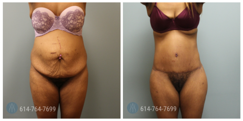 Post Op Photo: 3 mo Post Mommy Makeover with Tummy Tuck and Liposuction and Brazilian Butt Lift