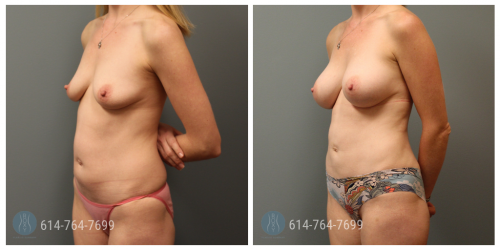 Post Op Photo: 6 mo Post Mommy Makeover with Breast Augmentation and Liposuction of Flanks - Implant Size: 300cc Silicone