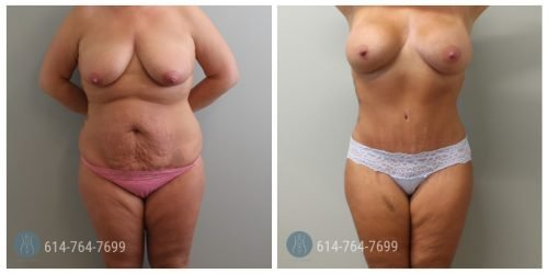 Post Op Photo: 3 mo Post Mommy Makeover with Breast Augmentation and Tummy Tuck and Liposuction of the Flanks - Implant Size: 695cc Gummy Bear Implants