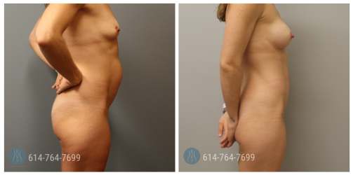 Post Op Photo: 6 mo Post Breast Augmentation and Mini-Abdominoplasty - Implant Size: 200cc Silicone