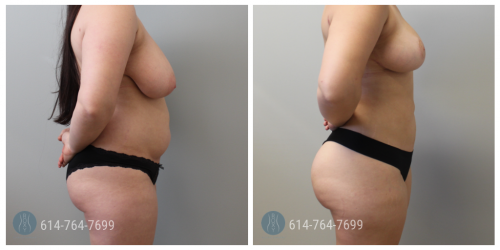Post Op Photo: 6 mo Post Mommy Makeover with Breast Reduction and Liposuction 360 and Brazilian Butt Lift