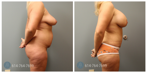Post Op Photo: 6 weeks Post Breast Augmentation and Tummy Tuck and Liposuction of Flanks - Implant Size: 560cc Gummy Bear Implant