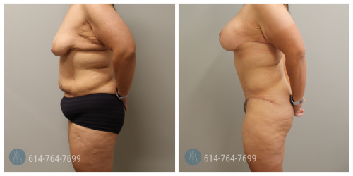 Post Op Photo: 6 mo Post Breast Augmentation Mastopexy and Tummy Tuck - Implant Size: 450cc