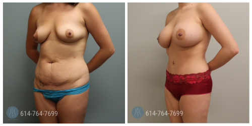 Post Op Photo: 6 mo Post Breast Augmentation and Tummy Tuck - Implant Size: 560cc Gummy Bear Implants