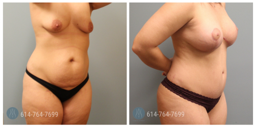 Post Op Photo: 3 mo Po Breast Augmentation Mastopexy and Tummy Tuck - Implant Size: 400 cc Silicone