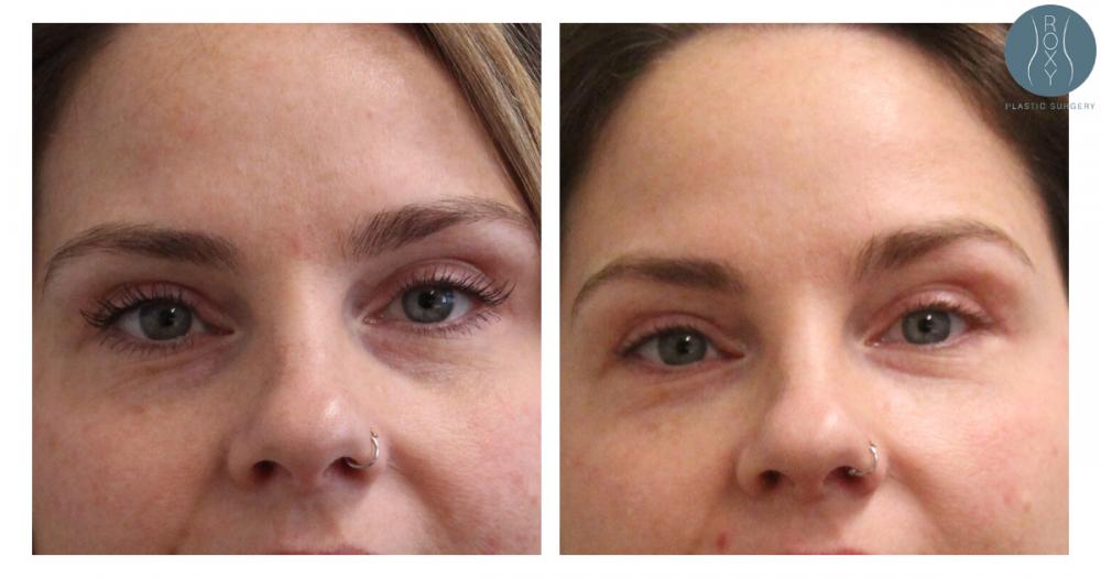 2 Months Post Undereye Filler