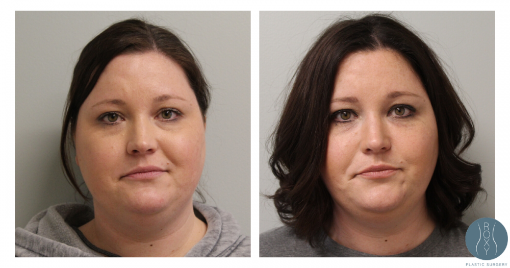 Before and After Juvederm Tear Trough