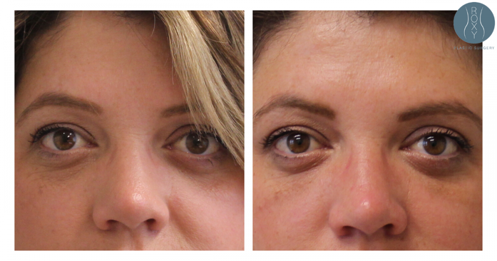 Before and After Underye Filler