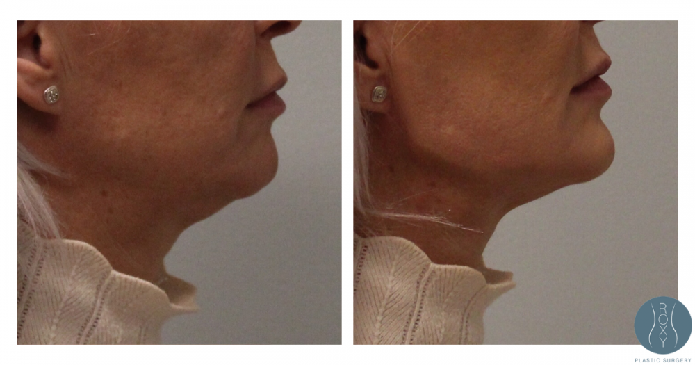 Before and After Jaw Contouring