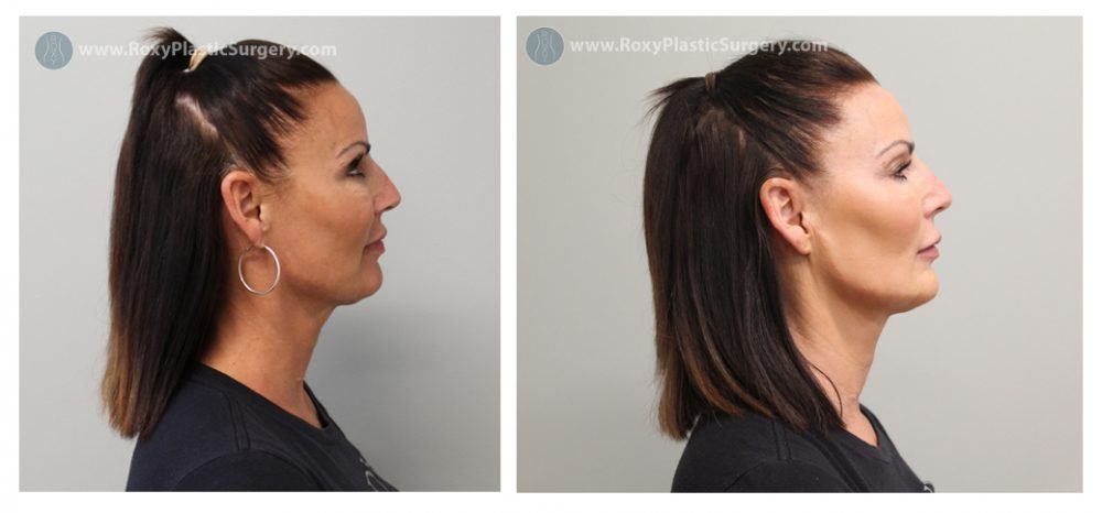 Jaw Contouring Before and Immediately After - Results Soften Over Time