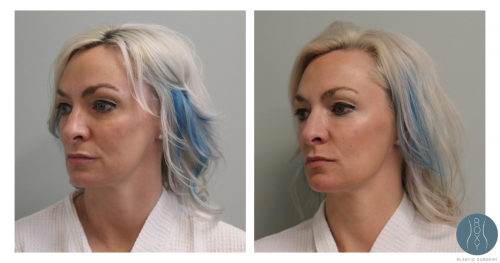 Undereye Filler Before and After with Kybella