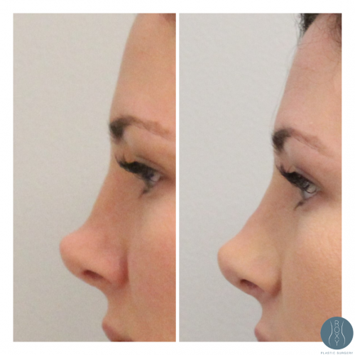 Nonsurgical Rhinoplasty Before and After