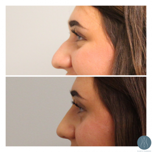 Nonsurgial Rhinoplasty Before and After