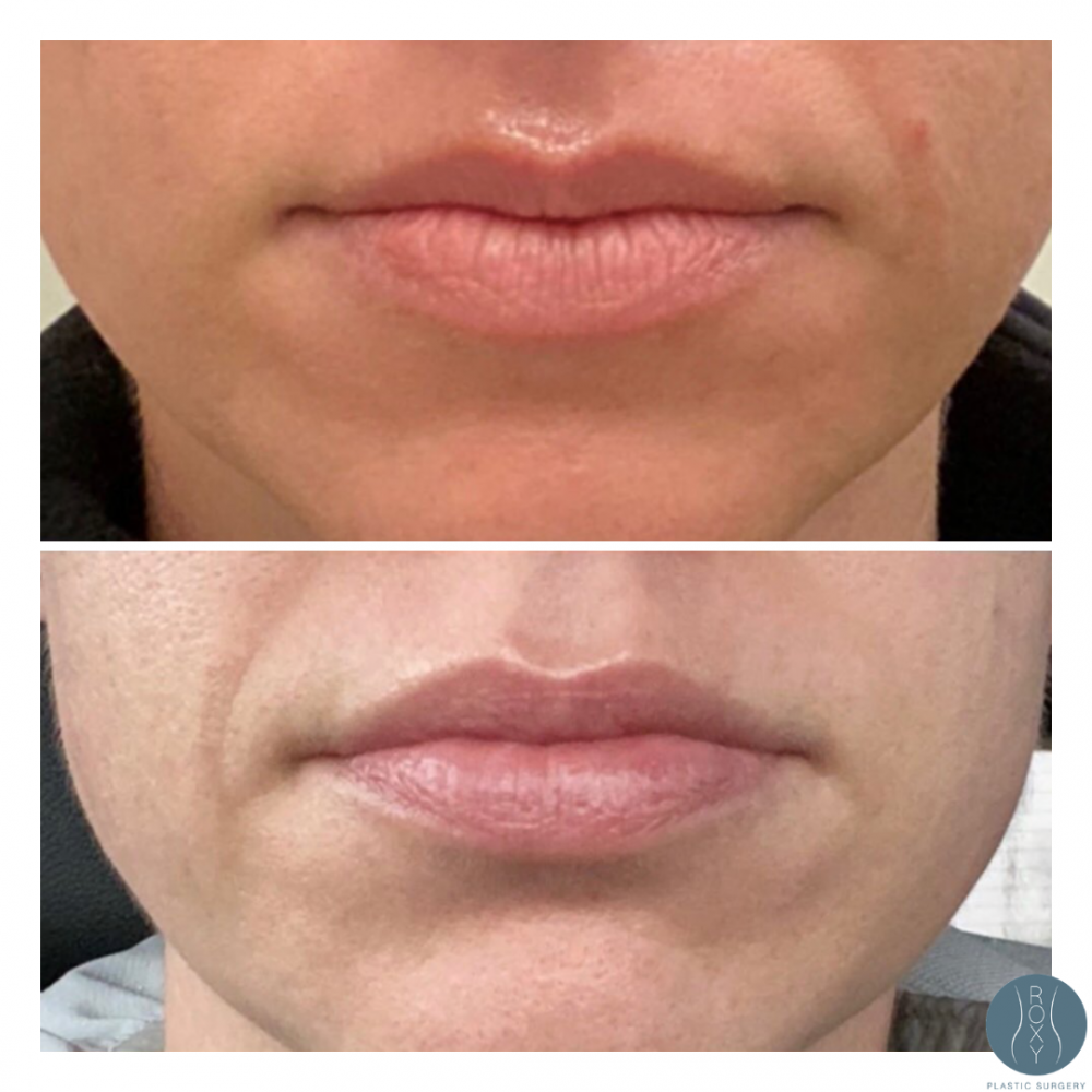 ROXY Lip Flip Before and After